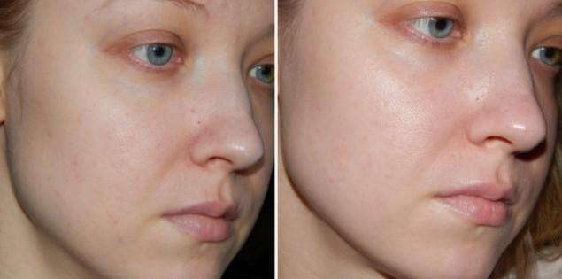 Улитка ахатина косметология до и после