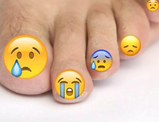 Грибок ногтей (онихомикоз) как выглядит, стадии заболевания. Где можно заразиться грибком ногтей, как лечить. Народные средства против грибка ногтей.