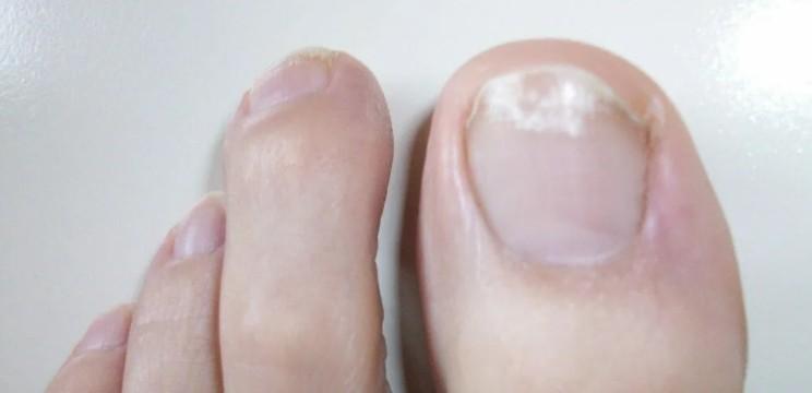 Грибок ногтей начальная стадия фото