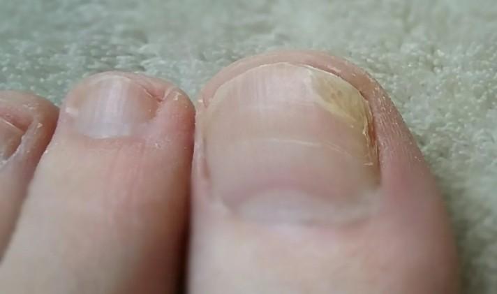 Первые признаки грибка ногтей